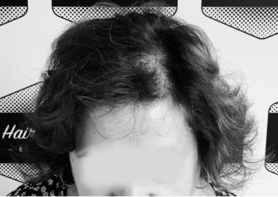 alopécie femme 1