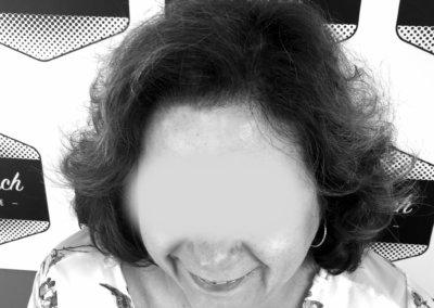 alopecie femme 2